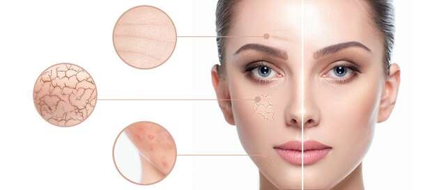 Sleva 47% na pobyt - Odstranění žilek, pigmentace či akné intenzivním pulsním světlem v salonu ToWell v…