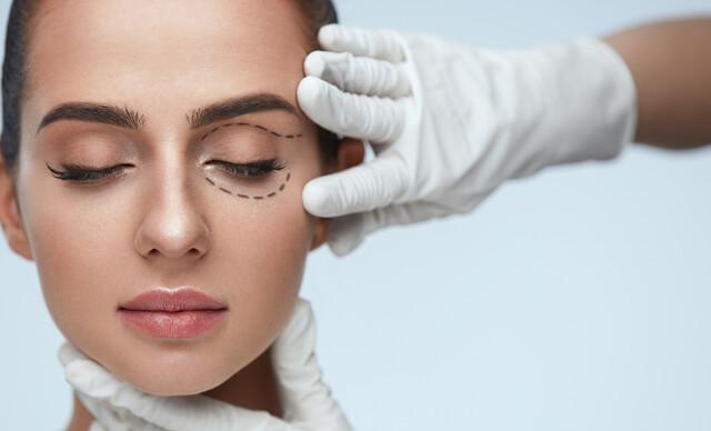 Blefaroplastika – korekcia očných viečok