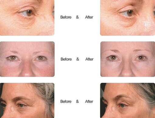 Hifu SMAS ultherapia – neinvazívny facelifting čela, očného okolia, líc, podbradku.