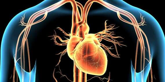 Vyšetrenie ciev artériografom – prevencia srdcového infarktu a mozgovej príhody/Bratislava, Slovensko