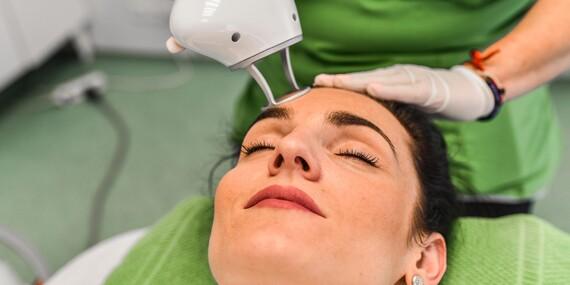 Frakčný resurfacing CO2 - účinné omladenie vašej pokožky v medicínskom centre Crystal Esthetic Clinic/Bratislava - Staré Mesto