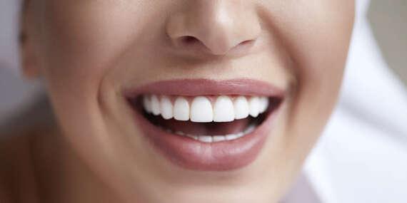 Bielenie zubov esenciou z prírodných látok/Bratislava – Podunajské Biskupice