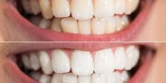 Bezperoxidové bělení zubů s částečkami z aktivního uhlí přístrojem WHITEN LED v Praze, Plzni a Brně - platnost až do října 2020/Praha, Brno, Plzeň