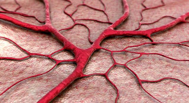 Odstránenie červených žiliek na tvári alebo na tele.