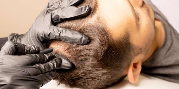 Trichopigmentácia – tetovanie chýbajúcich vlasov/Nitra