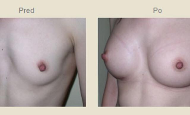 Krásne prsia už navždy – zväčšenie poprsia silikónovými implantátmi v IEM.