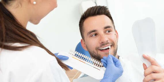 Revolučná metóda bielenia zubov Natural Smile Airbrush v Diamond skin/Bratislava - Staré Mesto