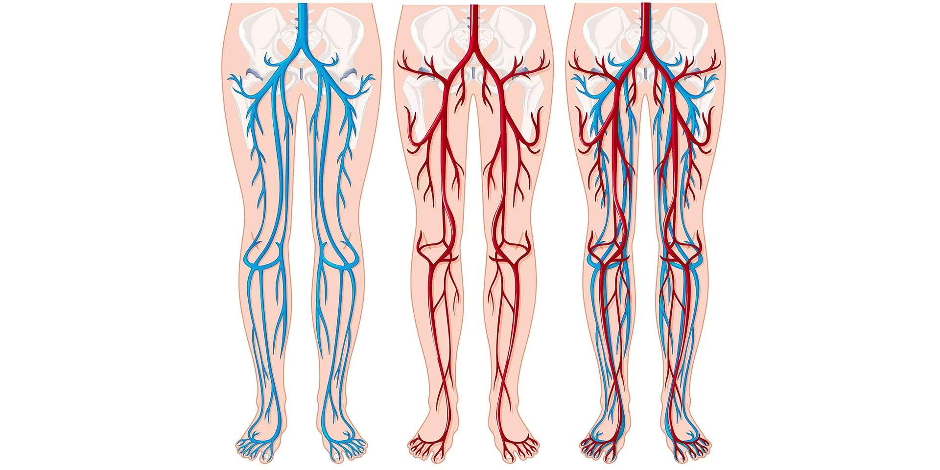 Ultrasonografia - moderné vyšetrenie ciev dolných končatín v MDc...