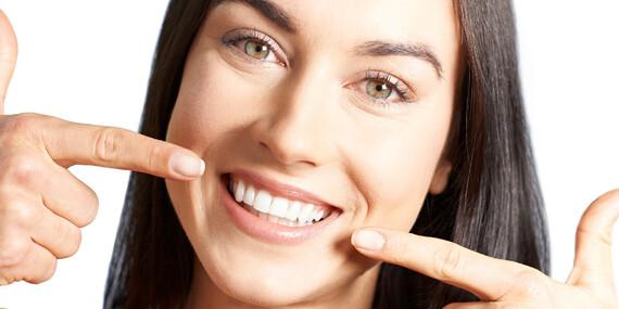 Až 92% sleva na bělení zubů bez peroxidu v Esthetic For You/Praha 5 - Smíchov