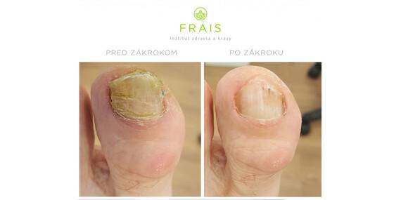 Ošetrenie plesňového ochorenia nechtov FOX laserom v Inštitúte zdravia a krásy Frais/Bratislava - Staré Mesto