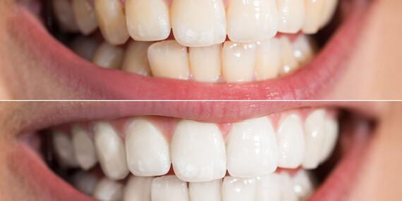 Bielenie zubov systémom Light whitening/Bratislava – Karlova Ves, Rača