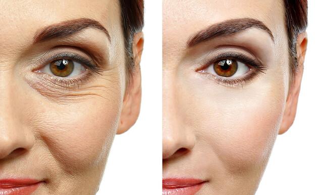 Fibroblast - neinvazívny lifting očných viečok a vrások