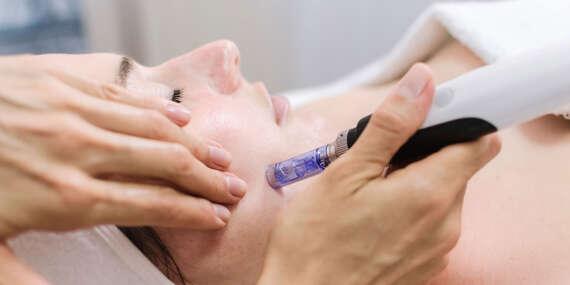 Mezoterapia, ošetrenie na podporu tvorby kolagénu, okamžite obnovuje, vyhladzuje, rozjasňuje a hydratuje pokožku/Košice - Staré mesto
