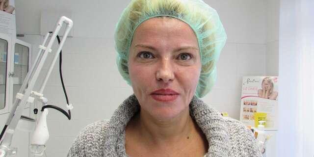 Frakčný resurfacing CO2 - účinné omladenie vašej pokožky v medicínskom centre Crystal Esthetic Clinic.