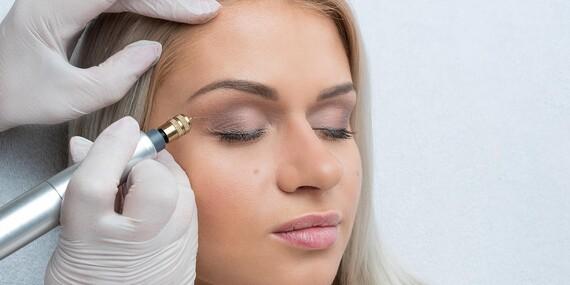 Fibroblast - nechirurgický lifting očného okolia alebo odstránenie vrások okolo očí, úst či na čele/Prešov