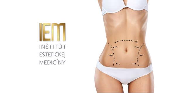 Abdominoplastika – odstránenie previsnutej kože alebo tuku na bruchu.