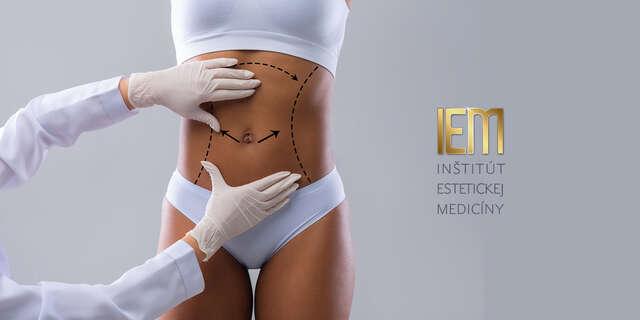 Abdominoplastika – odstránenie previsnutej kože alebo tuku na bruchu