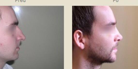 Rhinoplastika – nos, po akom ste vždy túžili/Pezinok