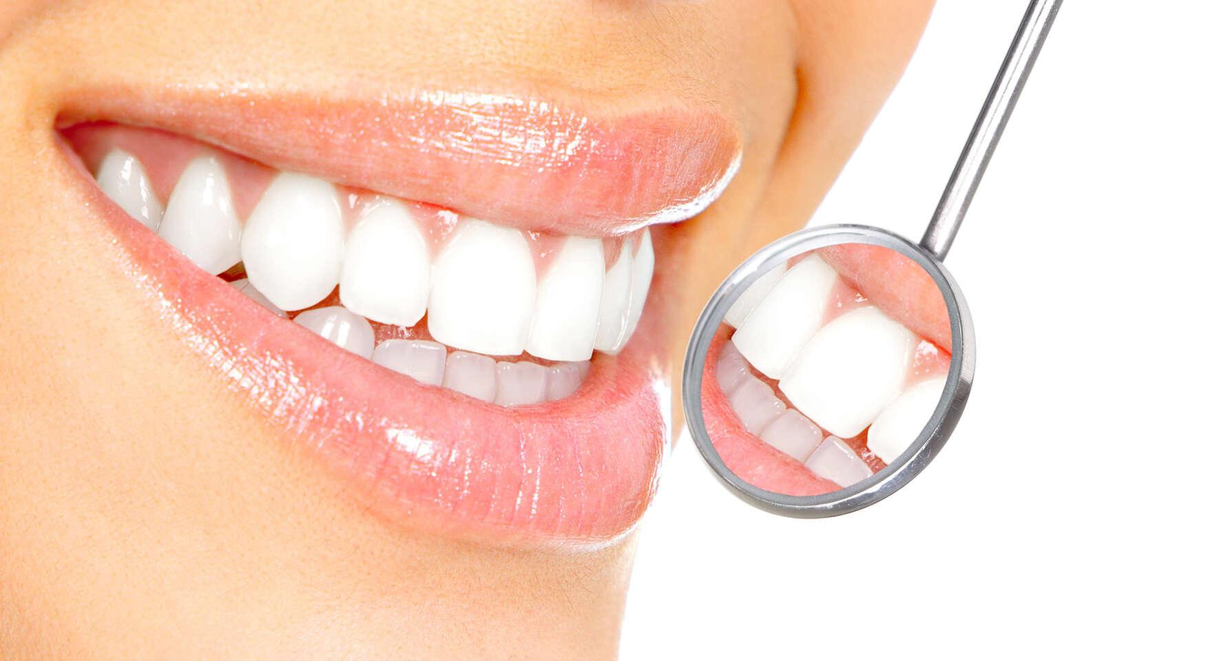 Revolučná metóda bielenia zubov Natural Smile Airbrush v Diamond s...