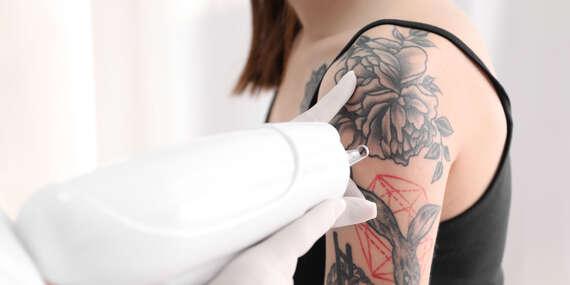 Odstránenie tetovania laserom v Inkfamous tattoo gallery / Bratislava - Ružinov