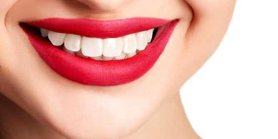 Dentálna hygiena a bielenie zubov pre žiarivý a zdravý úsmev/Košice – Staré Mesto
