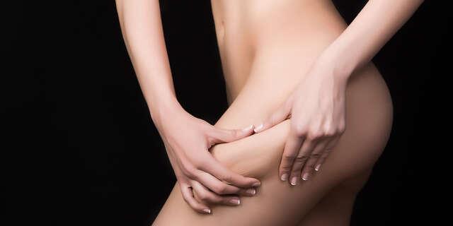 Neinvazívna liposukcia Lipolaserom v Beauty Esthetic Centrum.