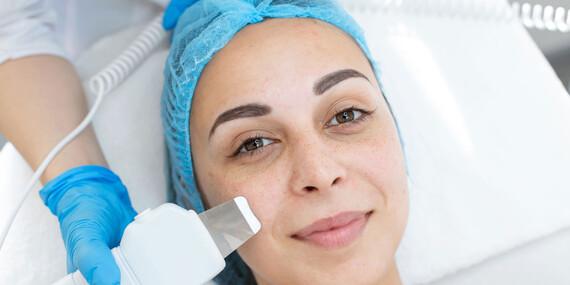 Ultrasonic Skin Scrubber 5v1 na čistenie pleti/Slovensko
