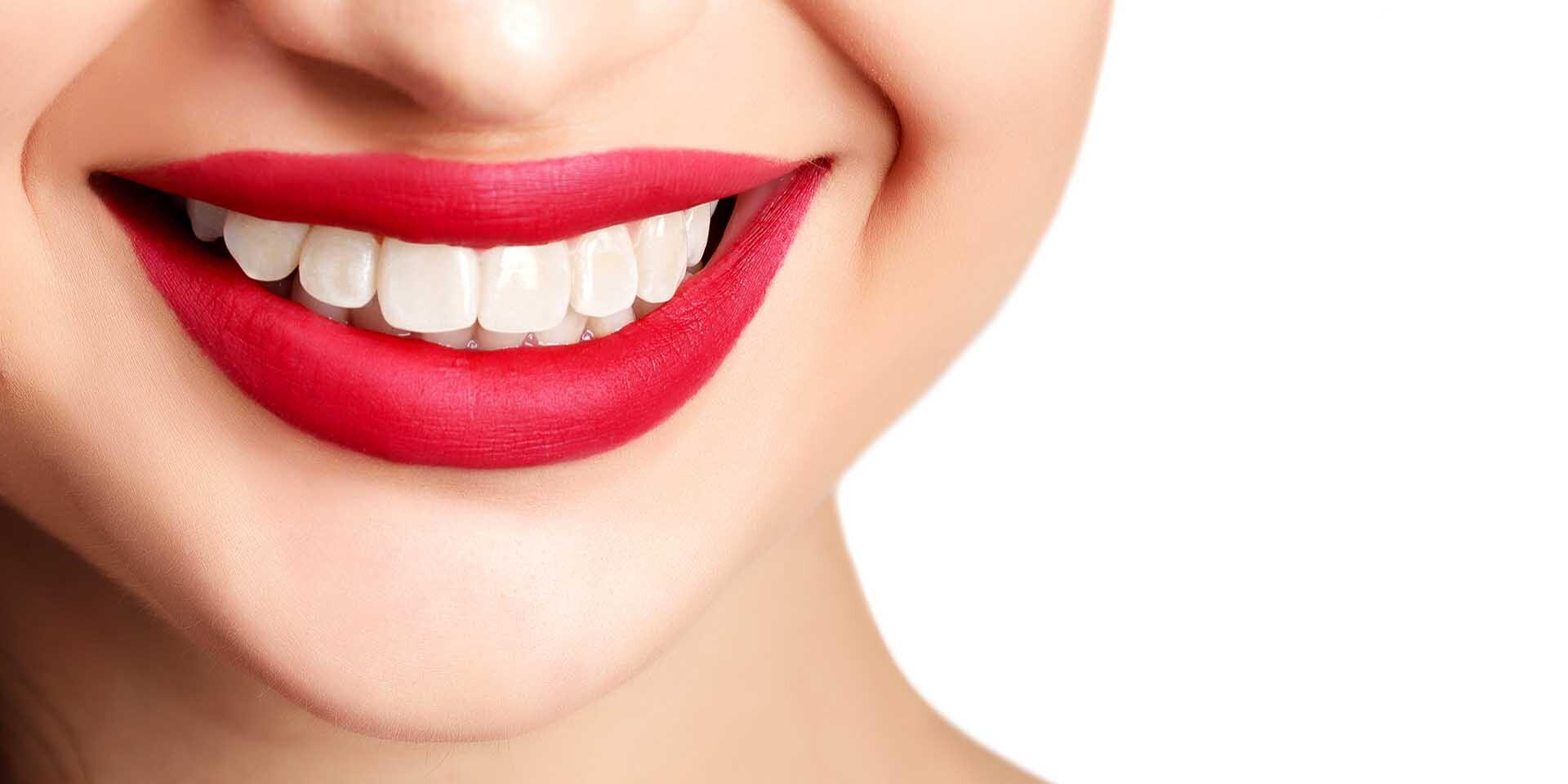 Dentálna hygiena a bielenie zubov pre žiarivý a zdravý úsmev