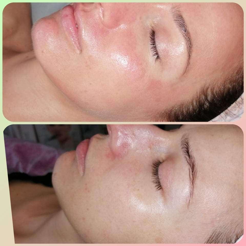 Kozmetické anti-akné ošetrenia – manuálne čistenie, chemický ...