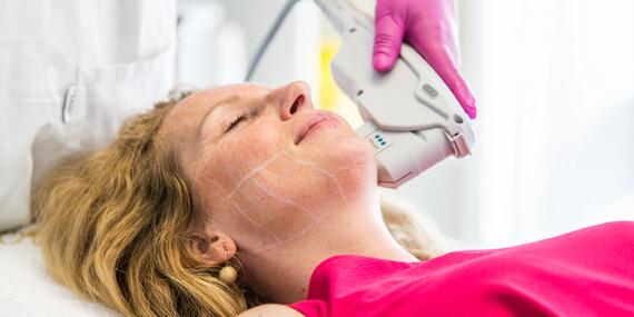 Hifu SMAS ultherapia – neinvazívny facelifting čela, očného okolia, líc, podbradku/Bratislava - Staré Mesto