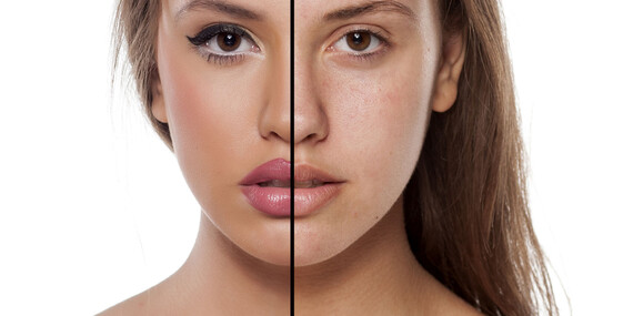 Zbavte sa ochabnutej pleti a získajte dokonalejší tvar tváre/Žilina