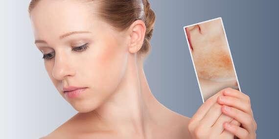 Odstránenie červených žiliek na tvári alebo na tele v Beauty Esthetic Centrum/Bratislava - Nové Mesto